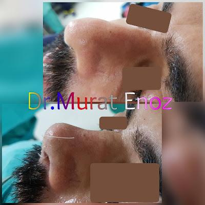 Nose Tip Plasty in Men Istanbul Turkey