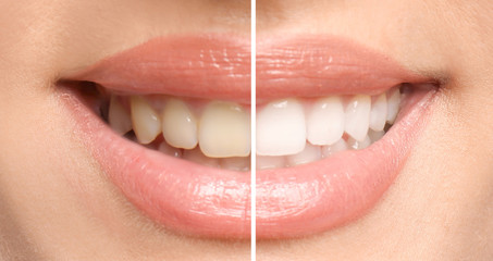 Teeth care- how to get rid yellow teeth - how to remove stain from teeth /stylebuzs