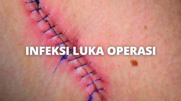 Infeksi Luka Operasi : Pengertian, Tanda dan Gejala, Penyebab, Faktor Risiko Pada Tubuh Manusia Pengertian Infeksi Luka Operasi Surgical site infection (SSIs) atau Infeksi Luka Operasi terjadi pada sekitar 71% dari kasus infeksi pada orang yang dirawat di rumah sakit.  Kondisi ini diklasifikasikan sebagai infeksi insisi dangkal, infeksi insisi dalam, atau infeksi ini terjadi dalam jangka waktu 2 minggu setelah operasi, meskipun infeksi insisi dalam dan infeksi organ/ruang dapat terjadi setelah sekian lama.  Tanda dan Gejala Infeksi Luka Operasi Gejala tergantung pada jenis SSIs yang di antaranya : Keluarnya nanah dari bekas luka operasi Terasa nyeri ketika menyentuh luka Kesakitan, pembengkakan, kemerahan, dan kehangatan  Penyebab Infeksi Luka Operasi Risiko mendapatkan infeksi ini terkait dengan jenis dan lokasi operasi (di bagian tubuh yang mana), berapa lama berlangsung, keterampilan dokter bedah, dan seberapa baik sistem kekebalan tubuh seseorang dapat melawan infeksi.  Ketika pembedahan melibatkan organ perineum, usus, sistem alat kelamin, atau saluran kemis, coliform dan bakteri anaerob dapat berhubungan dengan terjadnya infeks ini.  Faktor Risiko Infeksi Luka Operasi Risiko mendapatkan infeksi ini terkait dengan jenis dan lokasi di mana operasi pada tubuh, berapa lama berlangsung, keterampilan dokter bedah, dan seberapa baik sistem kekebalan tubuh seseorang dapat melawan infeksi.  Operasi yang melibatkan bagian-bagian tubuh yang rusak akibat trauma sebelumnya atau daerah infeksi yang ada sebelum operasi dilakukan akan meningkatkan risiko. Operasi yang melibatkan pemasangan perangka medis (pinggul dan lutut buatan, shunt, stent, katup jantung, dll) juga berisiko lebih tinggi untuk terjadinya infeksi.  Usia lanjut, diabetes mellitus, gula tinggi (glukosa), obesitas, malnutrisi, dan merokok meningkatkan risiko terhadap infeksi. Suhu tubuh yang rendah selama operasi, kehilangan darah, transfusi, dan adanya infeksi lain dalam tubuh merupakan faktor risiko tambahan