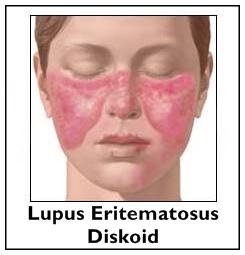 Cara Mengobati Lupus Eritematosus Diskoid