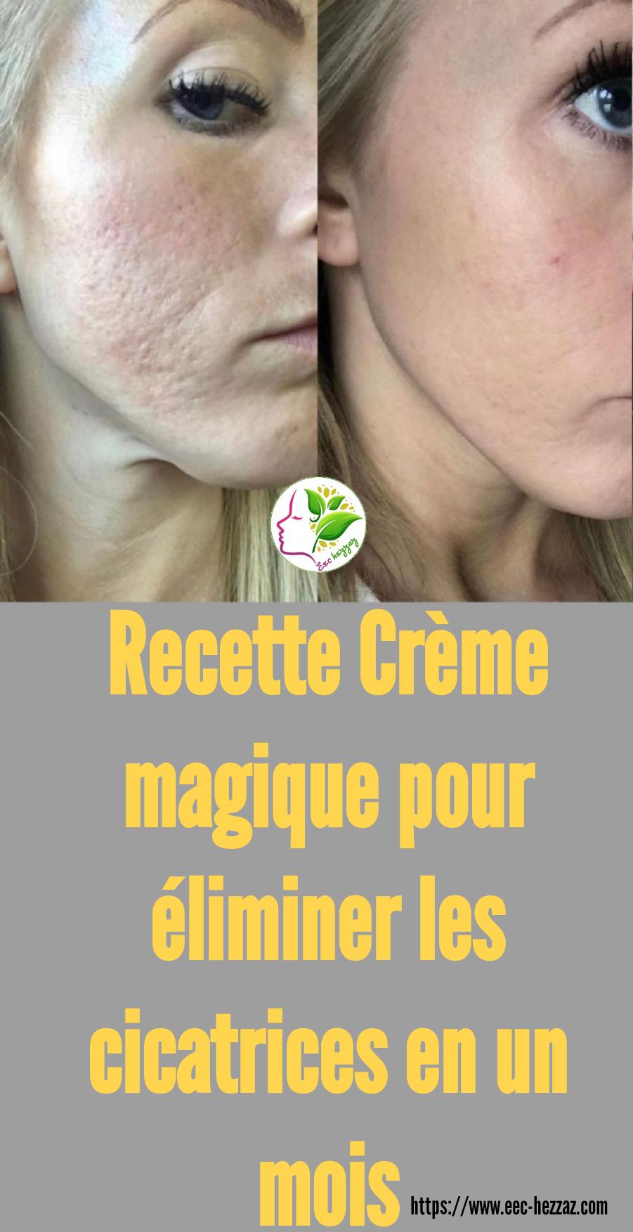 Recette Crème magique pour éliminer les cicatrices en un mois