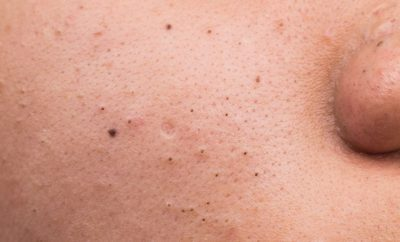 How to Remove Blackheads with the Best Treatments