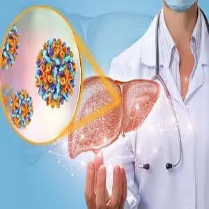 فيروس الكبد A - الاعراض والاسباب