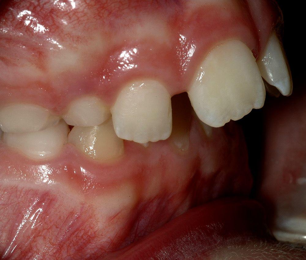 maloclusion-odontopediatria