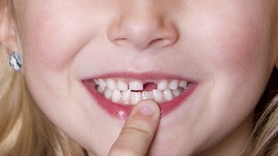 Mất răng cửa lâu năm có trồng lại được không?