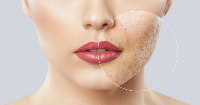 Le maquillage contient des bactéries qui provoquent une intoxication sanguine