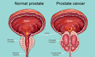 Prostate Cancer, Cure Prostate Cancer