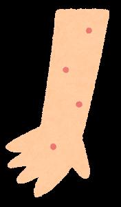 湿疹・イボのイラスト(手)