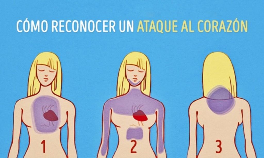 Dorable Donde Se Encuentra El Corazón Molde - Anatomía de Las ...