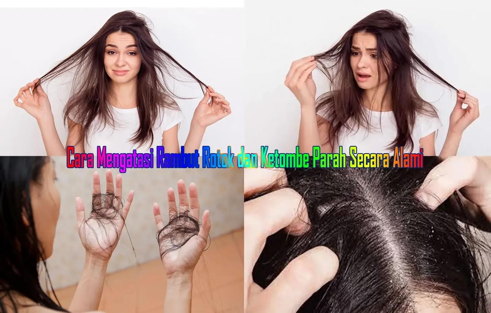 Cara Mengatasi Rambut Rontok dan Ketombe Parah Secara Alami