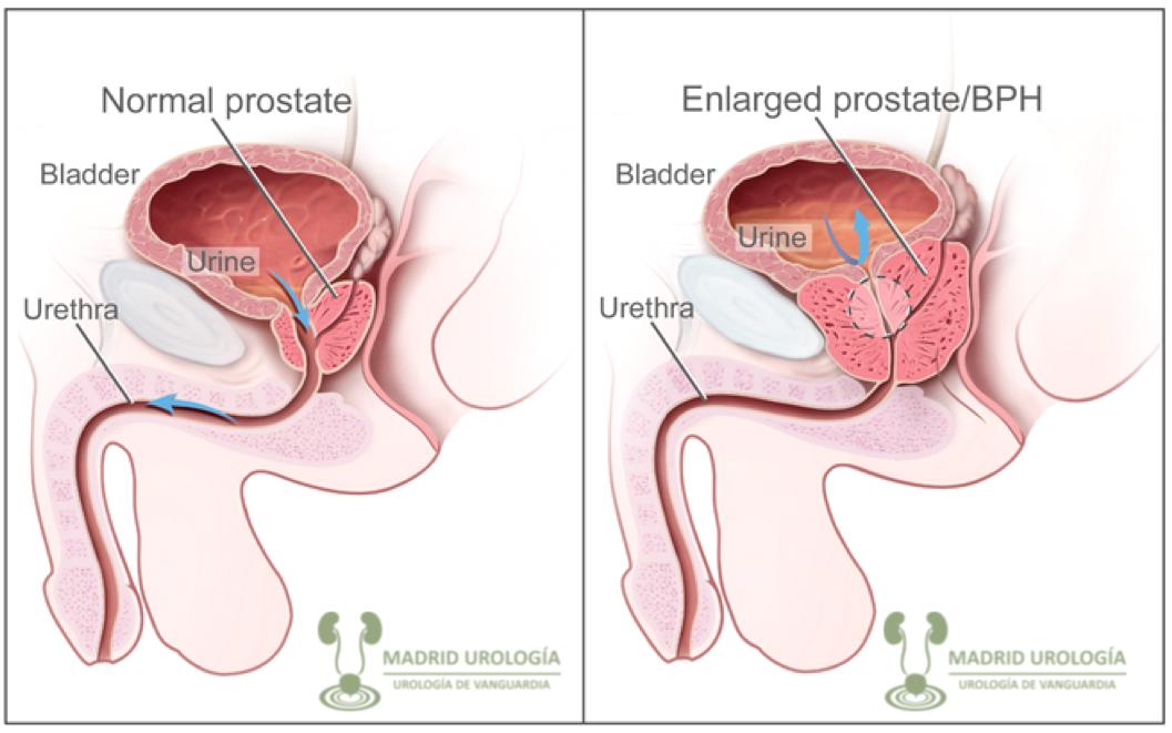 ultrasonido de próstata con rpm y