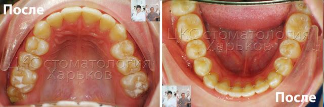 Ранее лечение, форма челюстей в финале