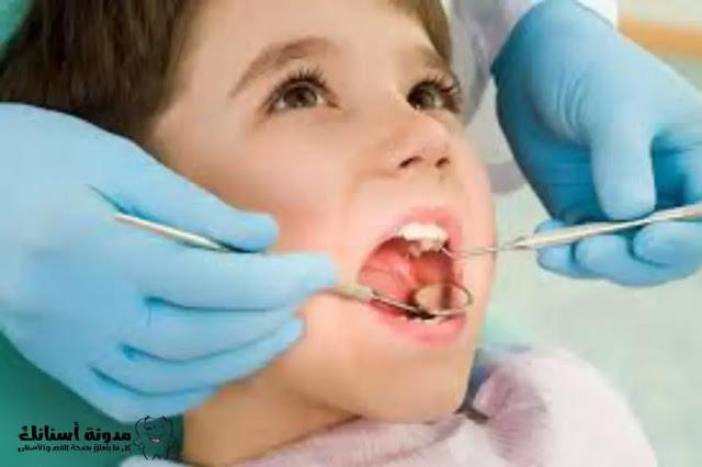 ما هي مضاعفات إهمال تسوس الأسنان اللبنية؟وماهي طرق الوقاية والعلاج؟