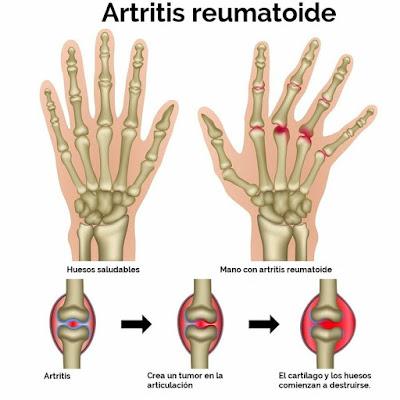 El dolor en las articulaciones de los dedos comúnmente es el primer síntoma de la artritis reumatoide.
