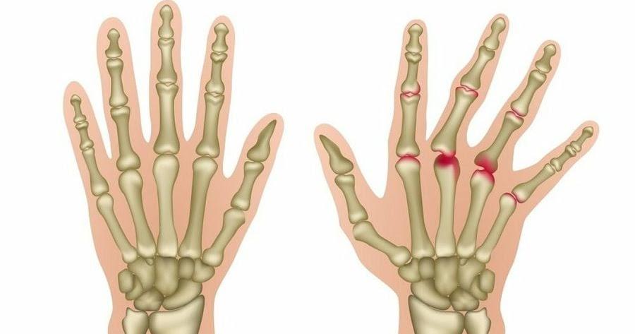 8issues Es esencial aprender sobre Ejercicios para dolor de espalda
