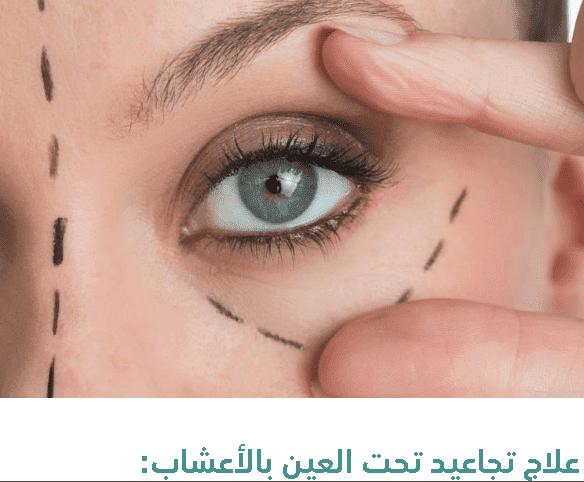 علاج تجاعيد الوجه والعينين بالأعشاب للنساء والرجال