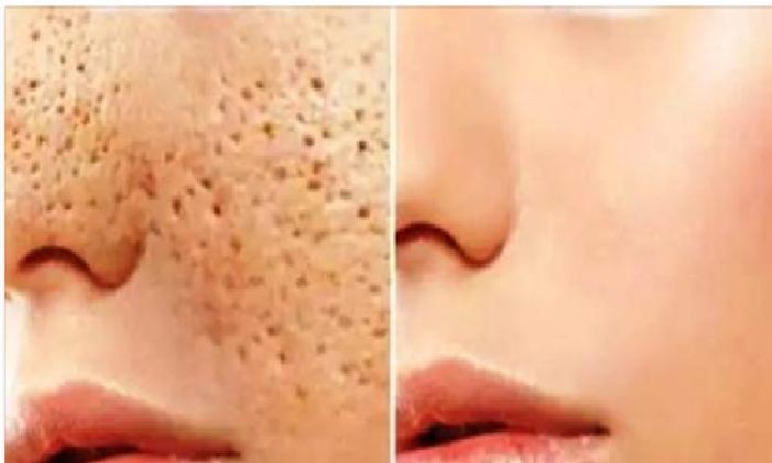 infección de la piel de vinagre de sidra de manzana