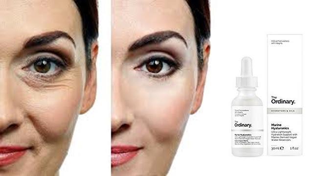 Mujer con arrugas antes y después.