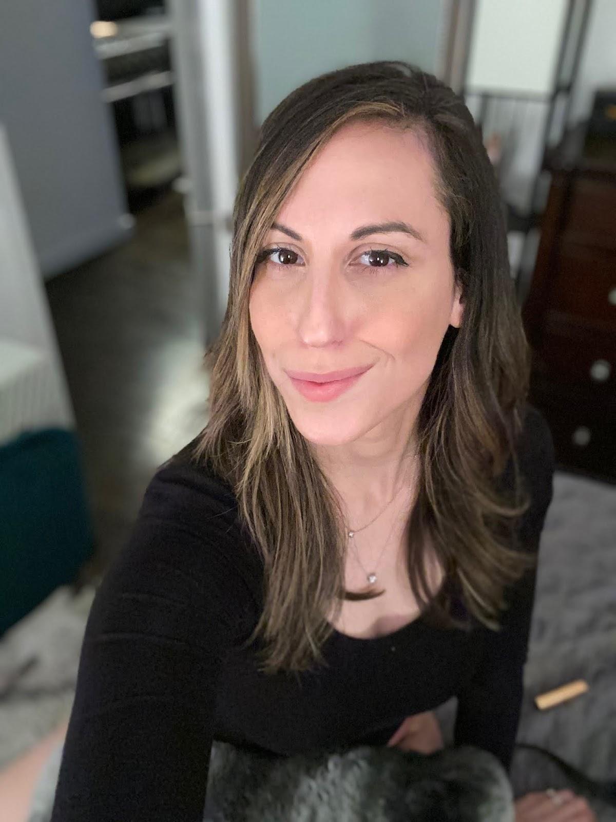 Skin Is In: My SkinPen- Microneedling experience