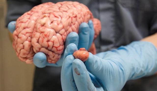 ماذا يحدث في الدماغ عندما ننام -موقع عناكب الاخباري