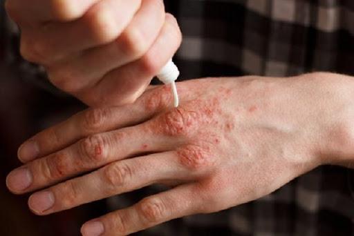 سعر ودواعي استعمال مرهم باكتروسين Bactrocin للجلد