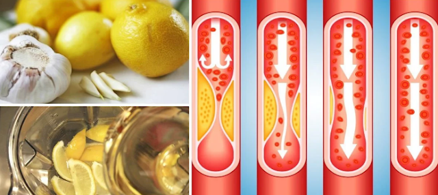 Elixir With Garlic And Lemon Reduces Blood Pressure And Ldl Cholesterol