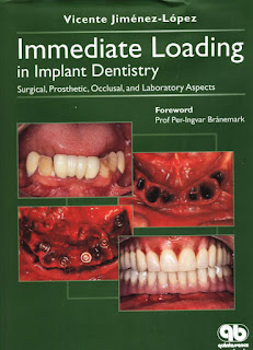 Immediate Loading In Implant Dentistry