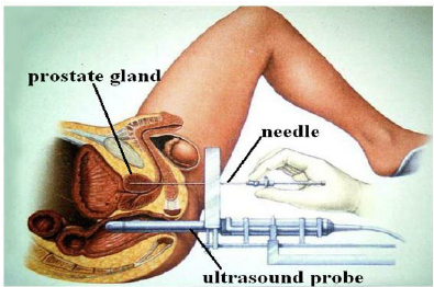 prostate brachytherapy procedure