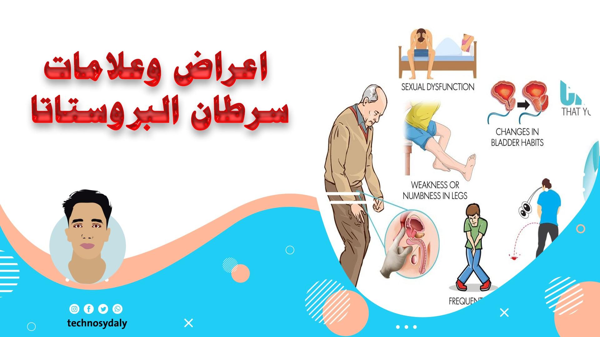 علامات انتشار سرطان البروستات