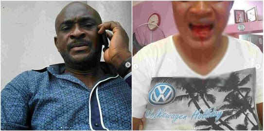 Man Accused Of Beating His 4th Wife Mercilessly In PH (Photos)