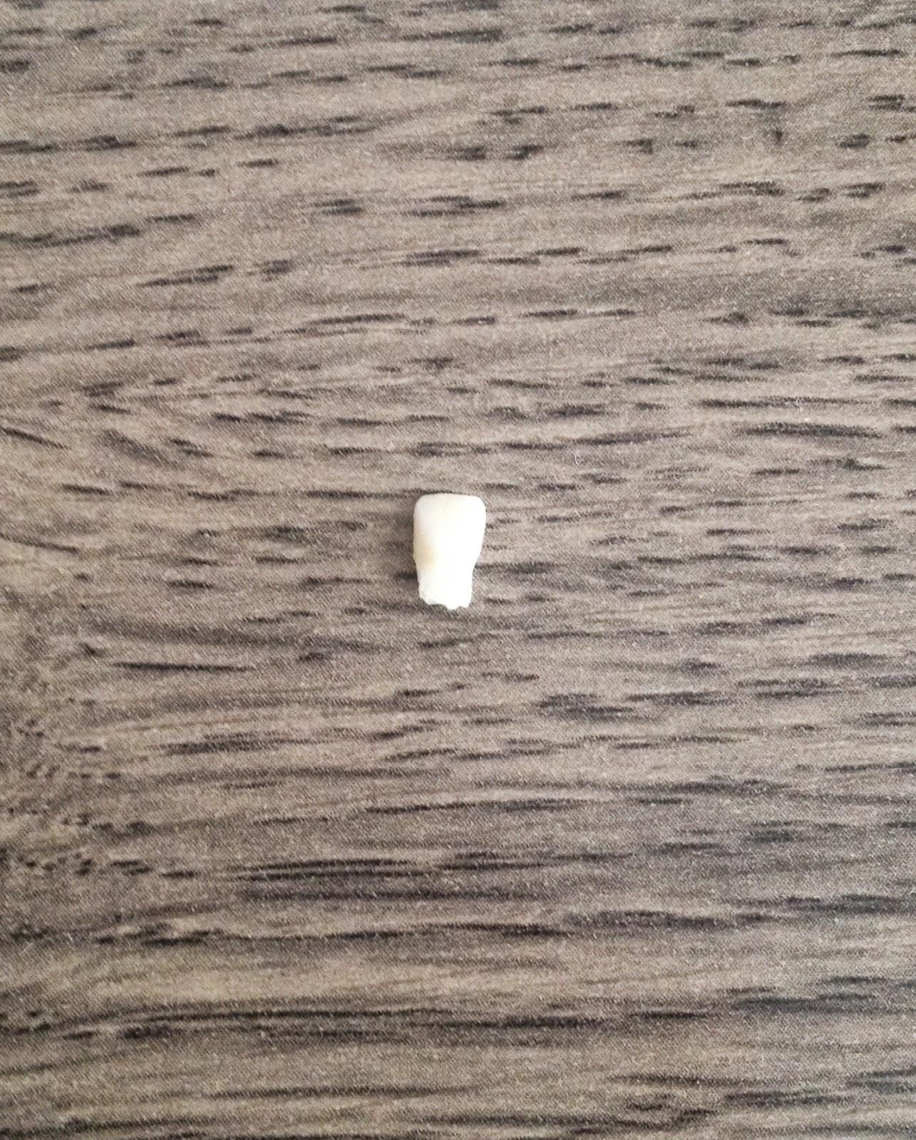 O primeiro dente caiu