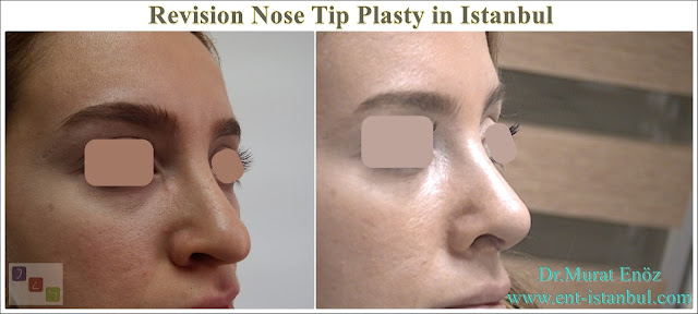 Revision Aesthetic Nose Tip Surgery, Revision Nose Tip Plasty in Istanbul,