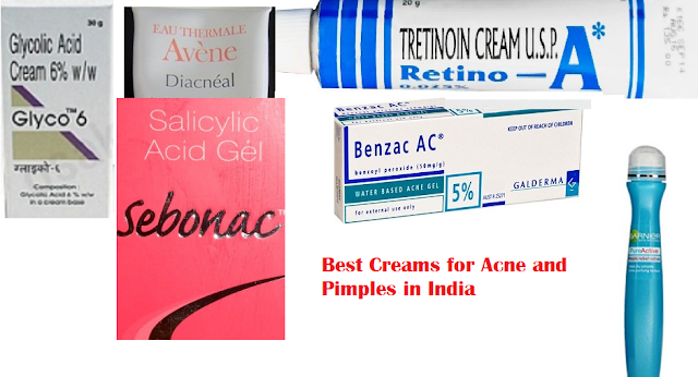 Best Creams for Acne and Pimples in India