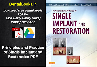 Principles and Practice of Single Implant and Restoration PDF