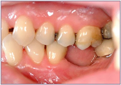 trồng răng cấm bằng phương pháp cấy ghép Implant -2