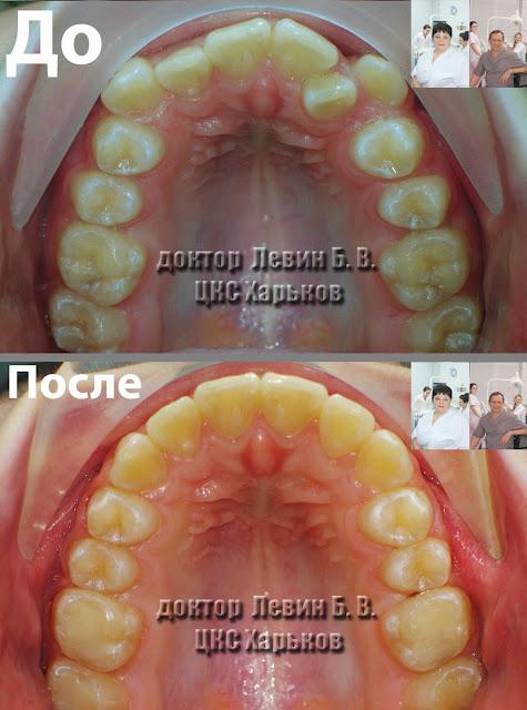 два фото окклюзионного вида зубов до и после лечения брекетами