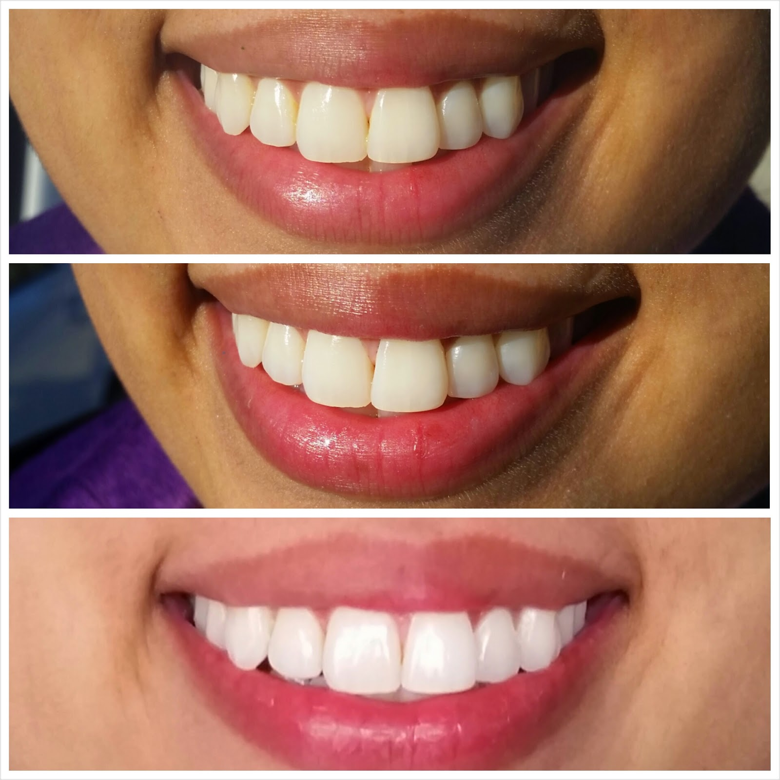 Health How To Whiten Your Teeth Naturally And In 5 Minutes