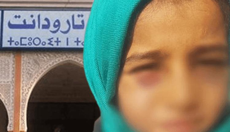 هل حقا عادت أعراض المرض على أعين تلميذة تارودانت
