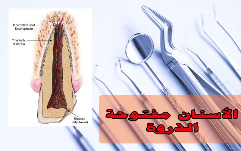 علاج عصب الأسنان الدائمة غير مكتملة الذروة (مفتوحة الذروة)