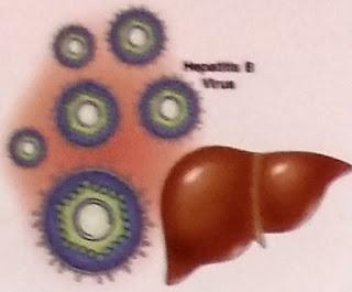 HWI untuk Penyakit Hepatitis