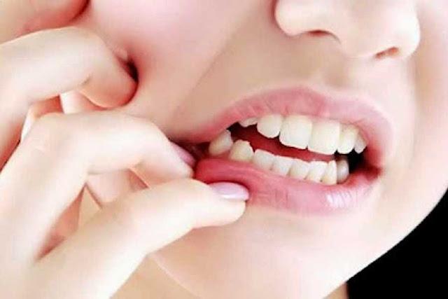 Cara Alami Mengobati Sakit Gigi Paling Ampuh