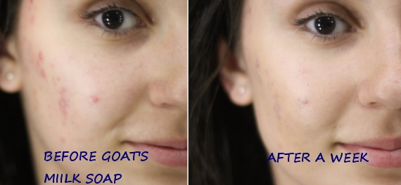 Goat milk has plenty of Skin Benefits - The Benefits of Goat's Milk Soap