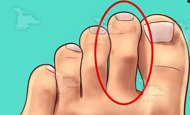خطير جداً.. 8 علامات تدل على جسدك يحتاج العلاج فوراً هل إصبع قدمك الثاني هو الأطول.. إذاً هذا ما عليك فعله وهل شعرت يوماً بحاجتك لتناول الحلويات.. هذا تعاني منه