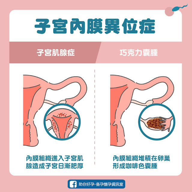什麼是子宮內膜異位症?