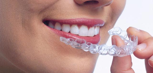 تقويم الاسنان الشفاف.....المميزات والأنواع والأسعار
