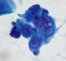 genital herpes-case-presentation