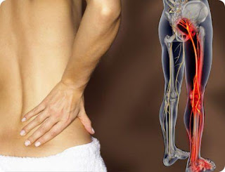 Sciatica SOS Review: sciatica treatment relief cure permanently