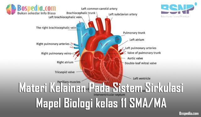Materi Kelainan Pada Sistem Sirkulasi Mapel Biologi kelas 11 SMA/MA