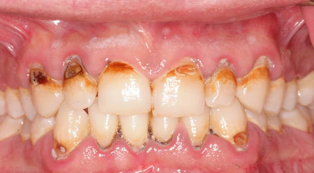 Home Remedies to Avoid Deterioration in Teeth and Problem of Cavity