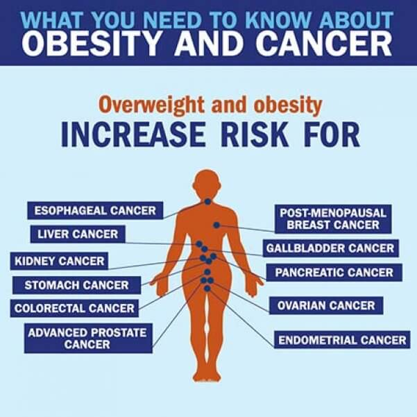 What you need to know about Obesity and Cancer